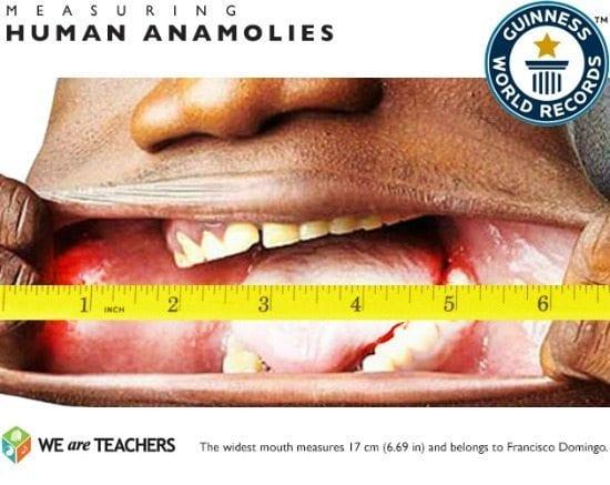 human-anamolies