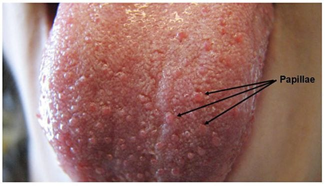Human tongue with an arrow pointing to the papillae